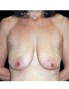 The Guide to Modern-Day Breast Surgery