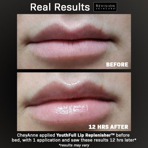 Experts Can't Get Enough of This New, $35 Lip-Plumping Treatment
