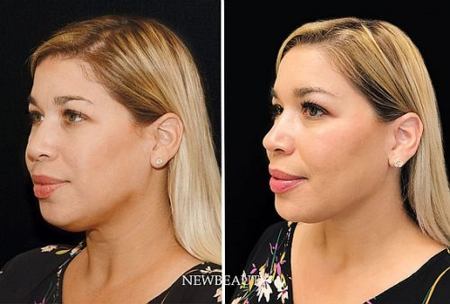 The Treatment That Gave My Face a Kardashian-Jenner Contour